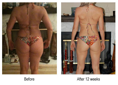 before_after_back_michelle-1